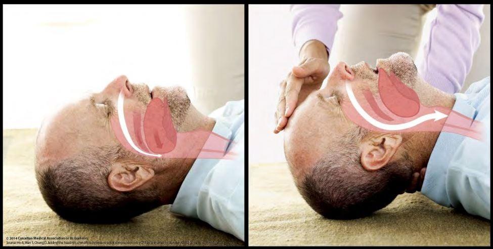Head Tilt and Chin Lift Method साठी प्रतिमा परिणाम