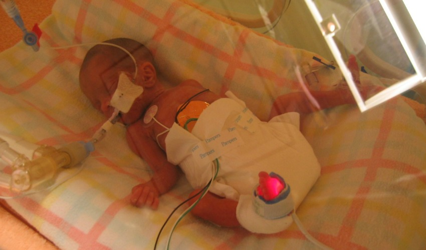 <who> Photo Credit: Megan Walker </who> Emma in the incubator at BC Children's Hospital in 2004.