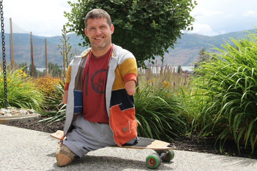 <who> Photo Credit: KelownaNow. </who> Chris Koch was born without any arms and legs, but that hasn't stopped him from taking over the world.