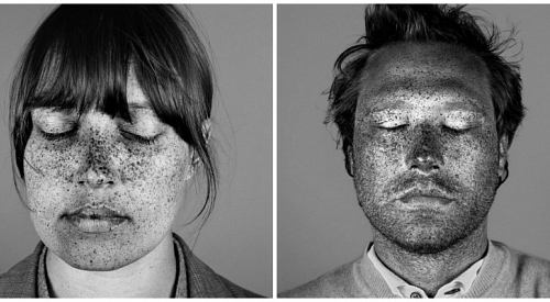 Photographer Shoots Subject With UV Light to Reveal Shocking Sun Damage